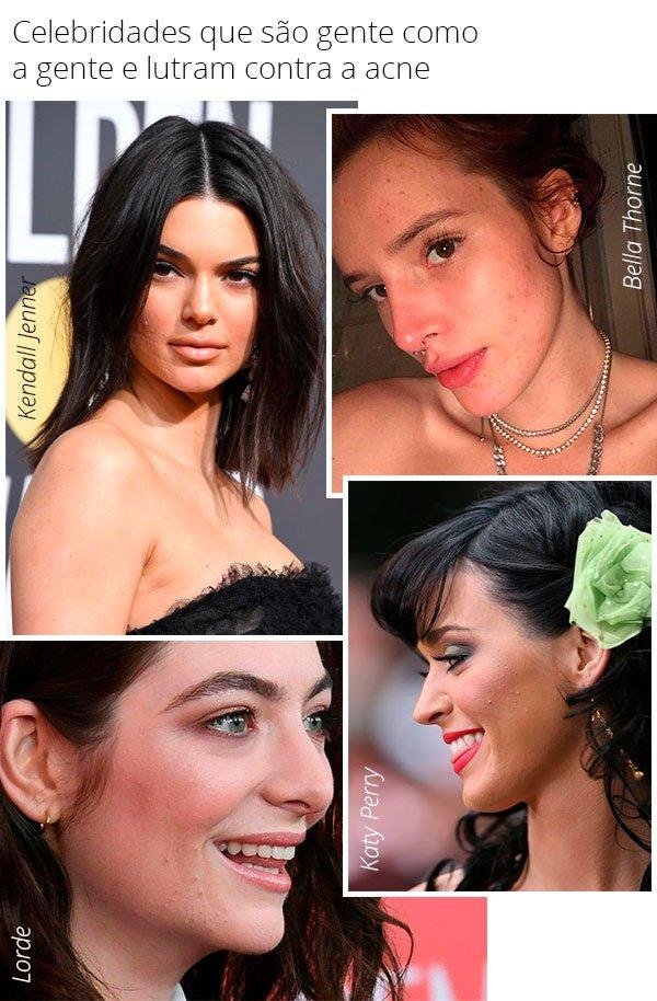 celebridades - acne - pele - manchas - tratamento