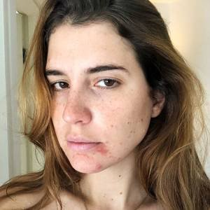 que tomar para evitar acne