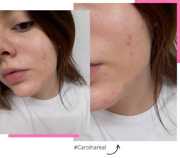 carol carlovich - produtos - acne - pele - espinha