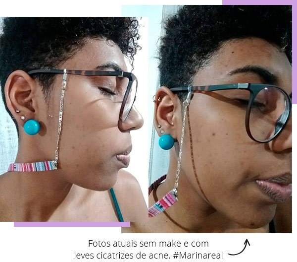 mari - freitas - pele - acne - leitoras stl