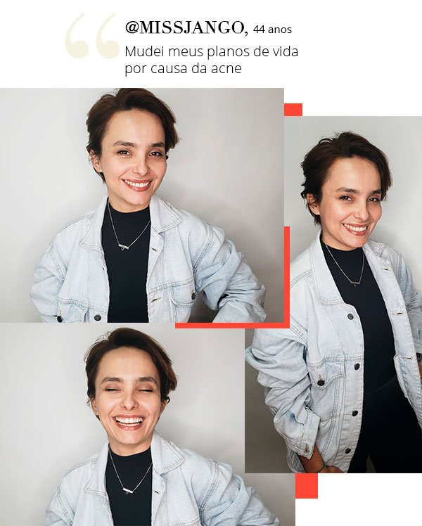 missjango - pele - acne - leitoras - stl