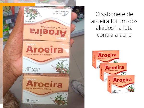 sabonete - aroeira - mari - fretas - stl