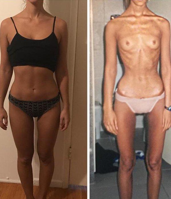 Clarice Caldas - anorexia - autoestima - anorexia - saúde