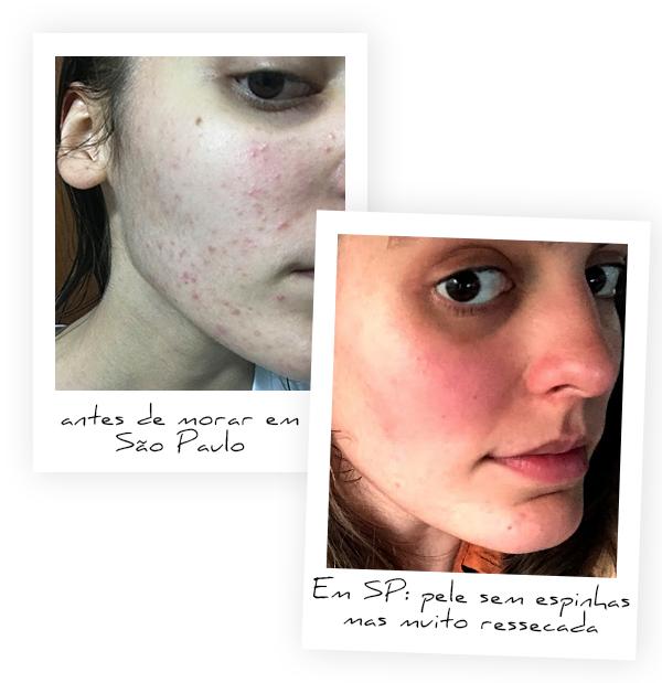 Isabella Aredes - sem maquiagem - skincare - inverno - São Paulo