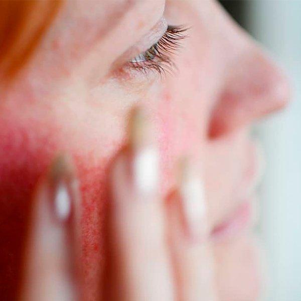 STEAL THE LOOK - Skincare - O que não fazer com sua pele caso você tenha rosácea