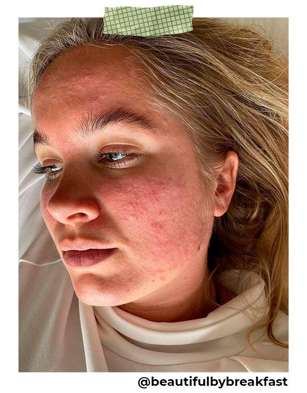 Joanna Kenny - Acne - Skinpositive - Primavera - Em casa - https://stealthelook.com.br