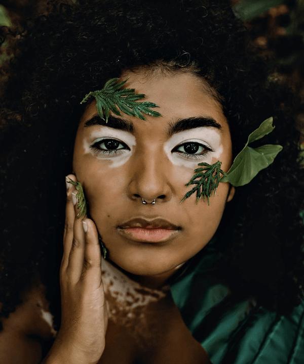 Carolina Clarkson - vitiligo - precisamos falar sobre - verão - street style - https://stealthelook.com.br