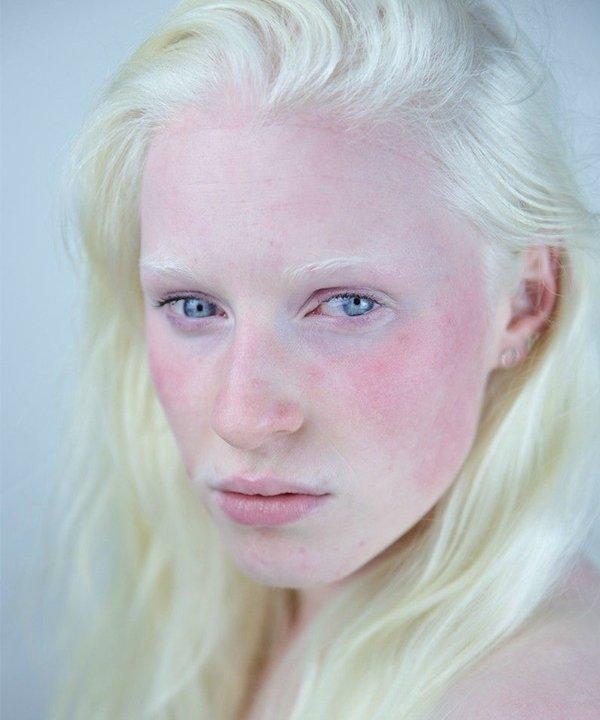 Lina Re - skincare - pele sensível - inverno - brasil - https://stealthelook.com.br