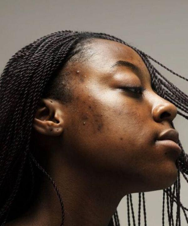 Sophie Harris Taylor  - como diminuir a acne  - acne  - maskne  - cuidados com a acne  - https://stealthelook.com.br