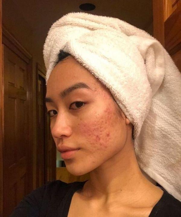 Pele com acne  - acne hormonal  - acne  - acne por estresse  - produtos para acne  - https://stealthelook.com.br