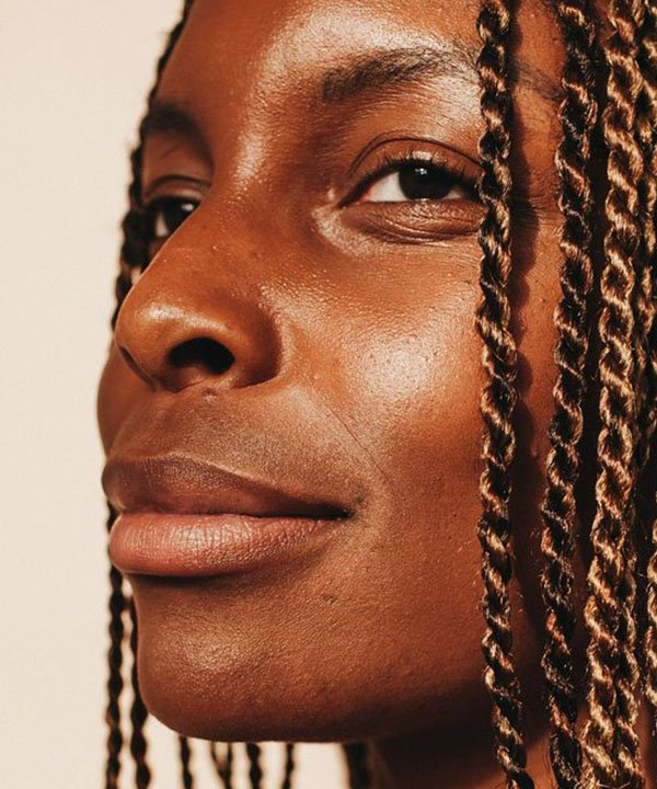 pele negra  - cuidados com pele negra  - hiperpigmentação em pele negra  - tratamento dermatologico  - manchas na pele negra  - https://stealthelook.com.br